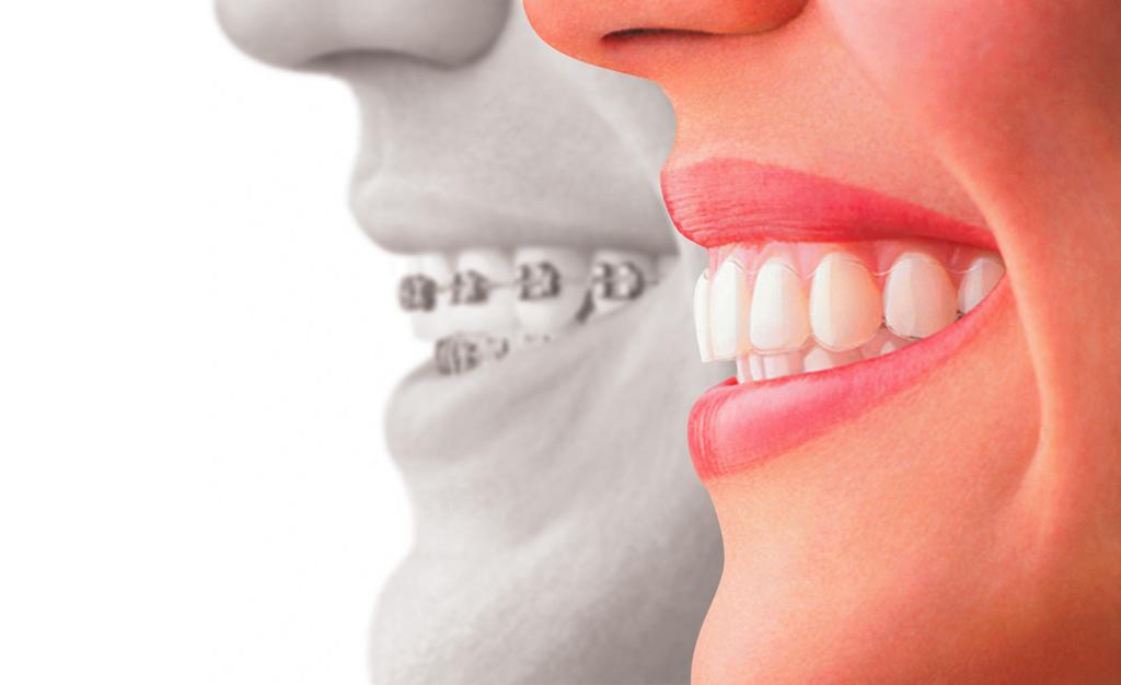 La ortodoncia invisible, un gran avance